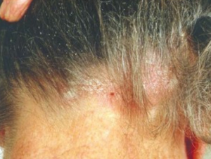 脂漏性皮膚炎n