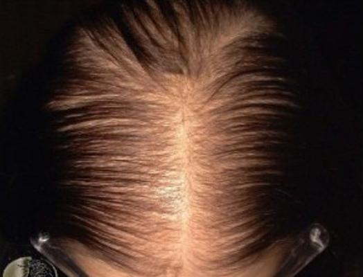 女性型脱毛症
